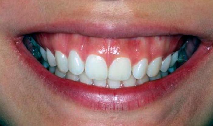 Cirurgia Para Sorriso Gengival